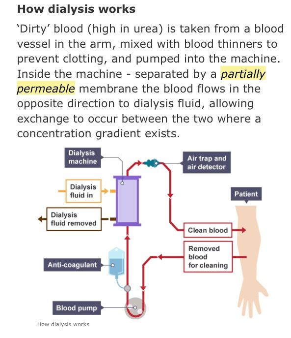 Working of dialysis goodhealthboss pinterest dialysis working of dialysis ccuart Images