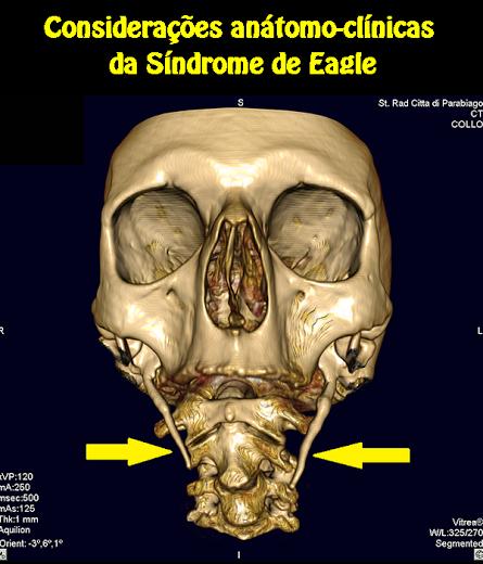 Considerações anátomo-clínicas da Síndrome de Eagle | OVI Dental