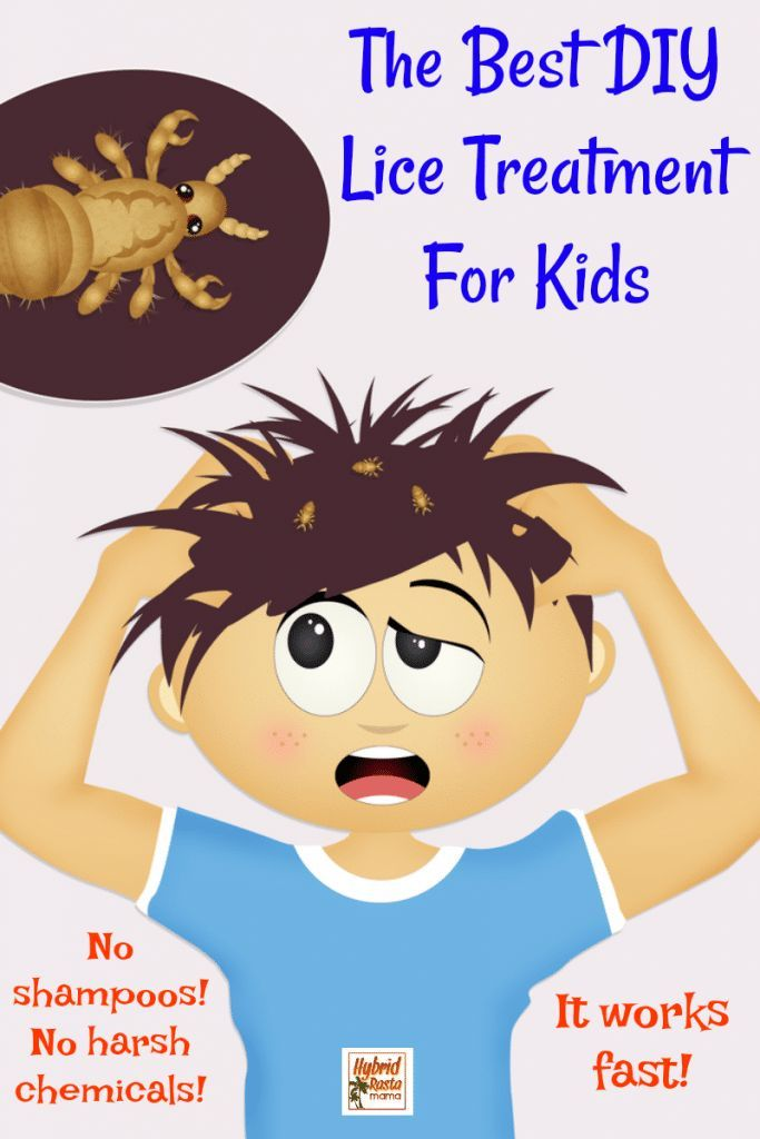 Coconut Oil and Head Lice #headlicetreatment