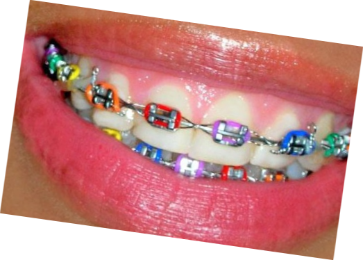 braces colors  Choose some colours to use on your braces next time you attend
