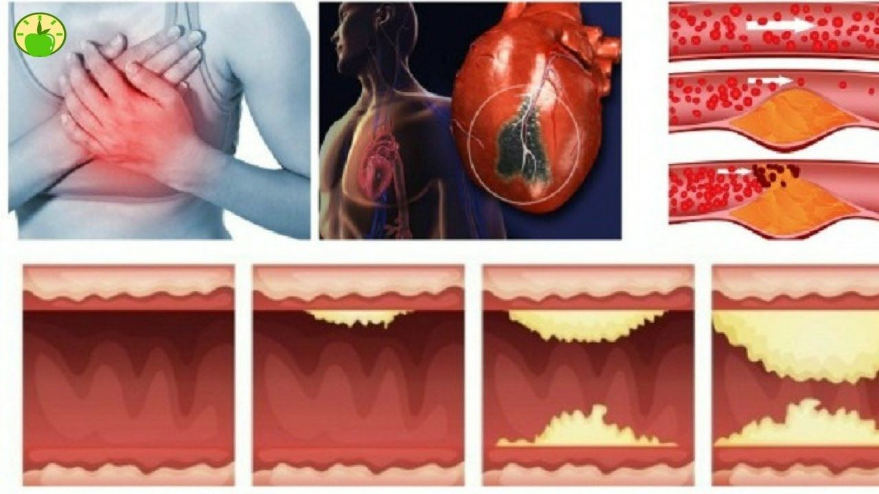 10 Foods That UNCLOG ARTERIES NATURALLY And Protect