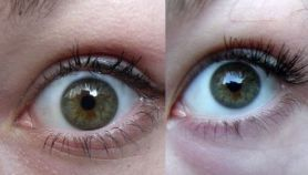how to get lighter eyes naturally fast
