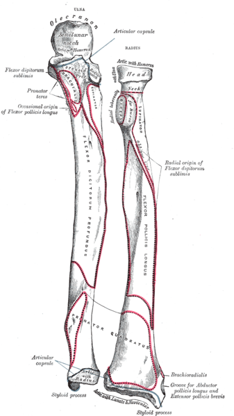Multiple Choice Questions - Upper Limb Anatomy: Ulna, Carpals ...