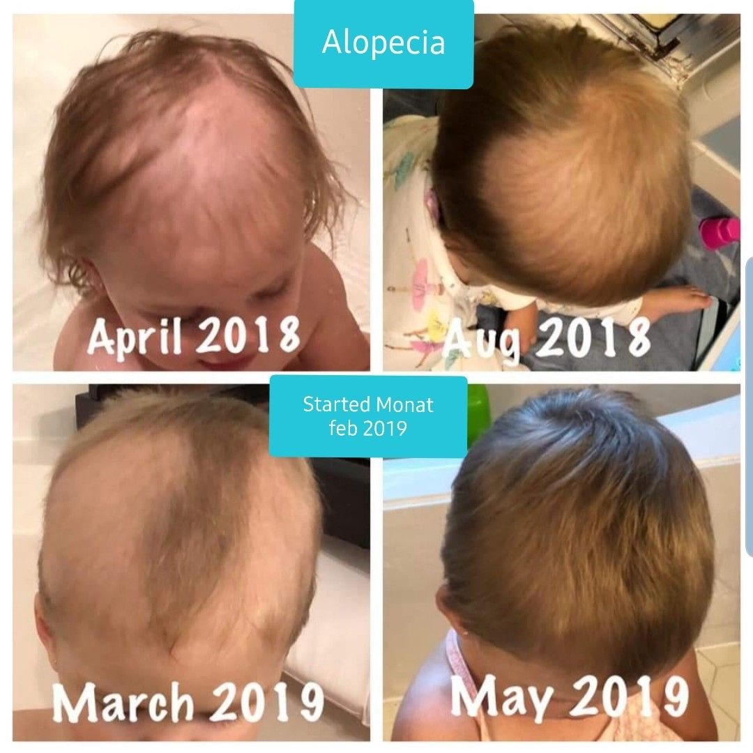 Alopeca baby 💜 Monat before and after! Products for every