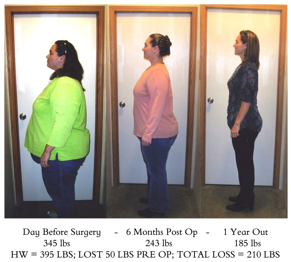 Your Source of Truth for Surgical Weight Loss