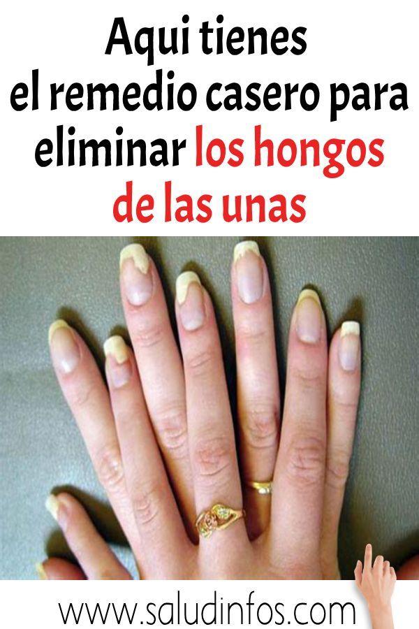 remedio para hongos en las uñas manos