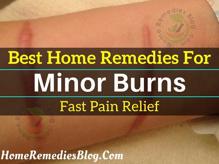 7 Soothing Home Remedies for Burns Relief Home Remedies For Burns, Natural  Home Remedies,