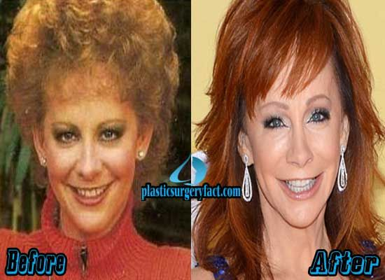 Reba McEntire Before and After Plastic Surgery | http://plasticsurgeryfact.com/reba-mcentire-plastic-surgery-before-and-after-photos/