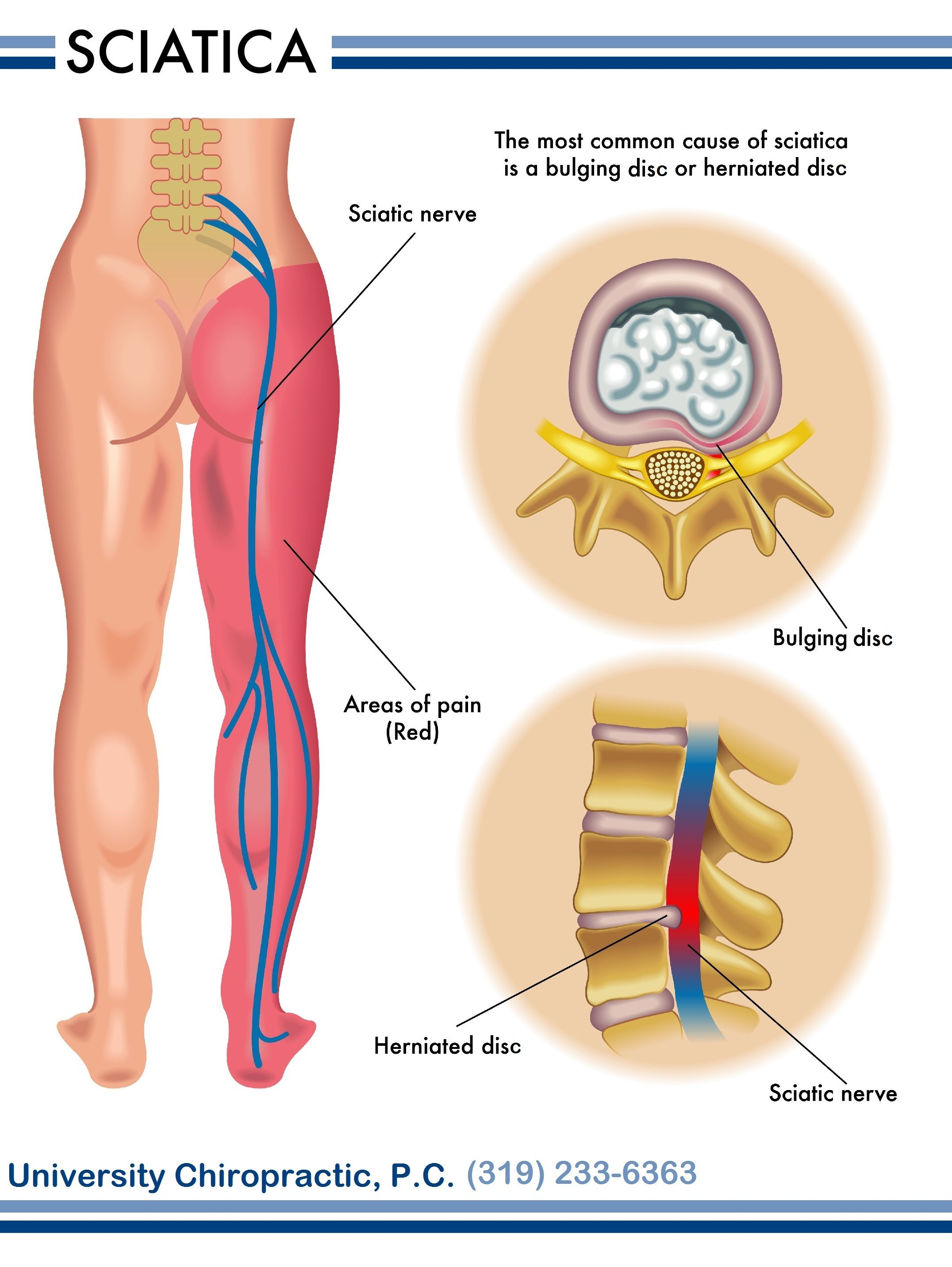 Diagram Of Lower Back Herniated Disc Diy Enthusiasts Wiring Diagrams