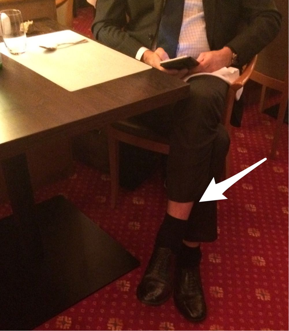 ... deshalb trägt ein echter Gentleman auch Kniestrümpfe und keine Socken ! ;-)