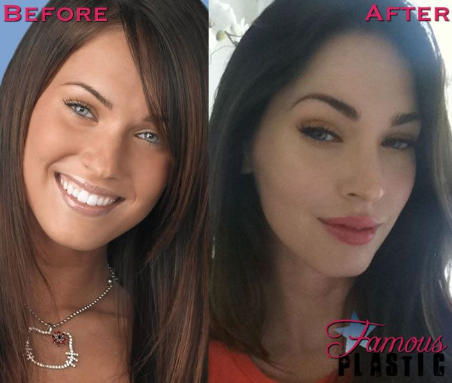 Celebrity Botox Pictures - Photos of Stars Before and After Botox