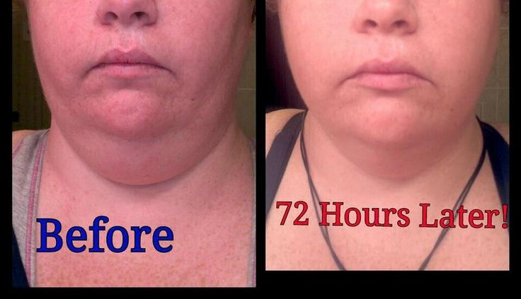 Get rid of a double chin fast and easy without surgery