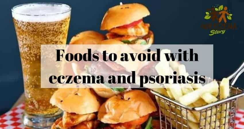 Foods to avoid with eczema and psoriasis you will be