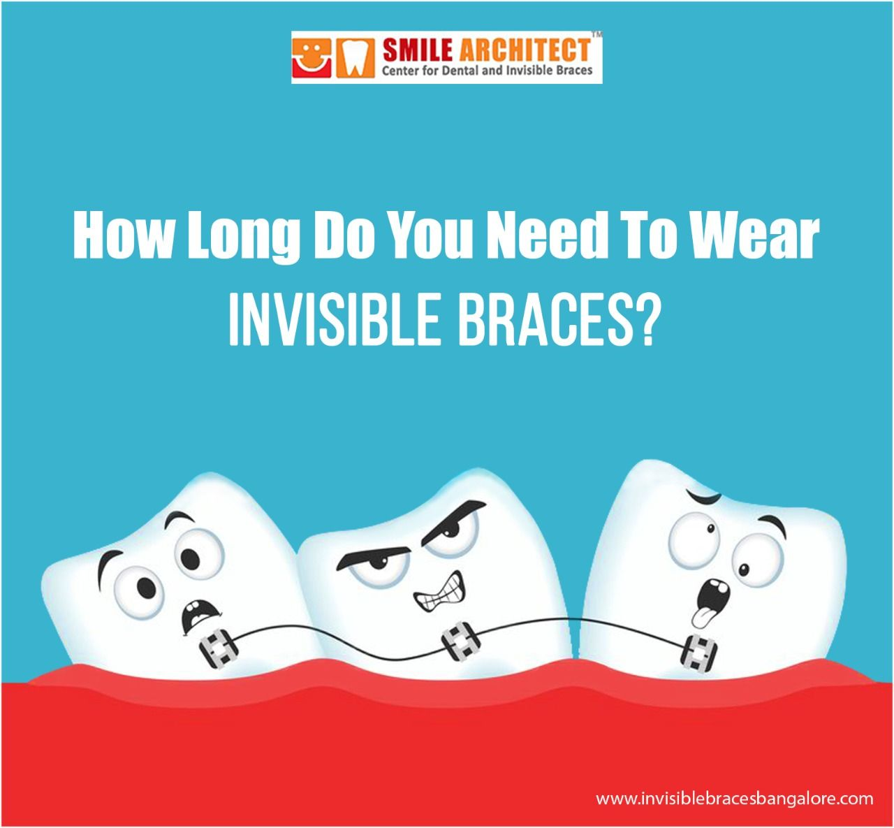 Invisible bracesHow long do you need to wear it? The