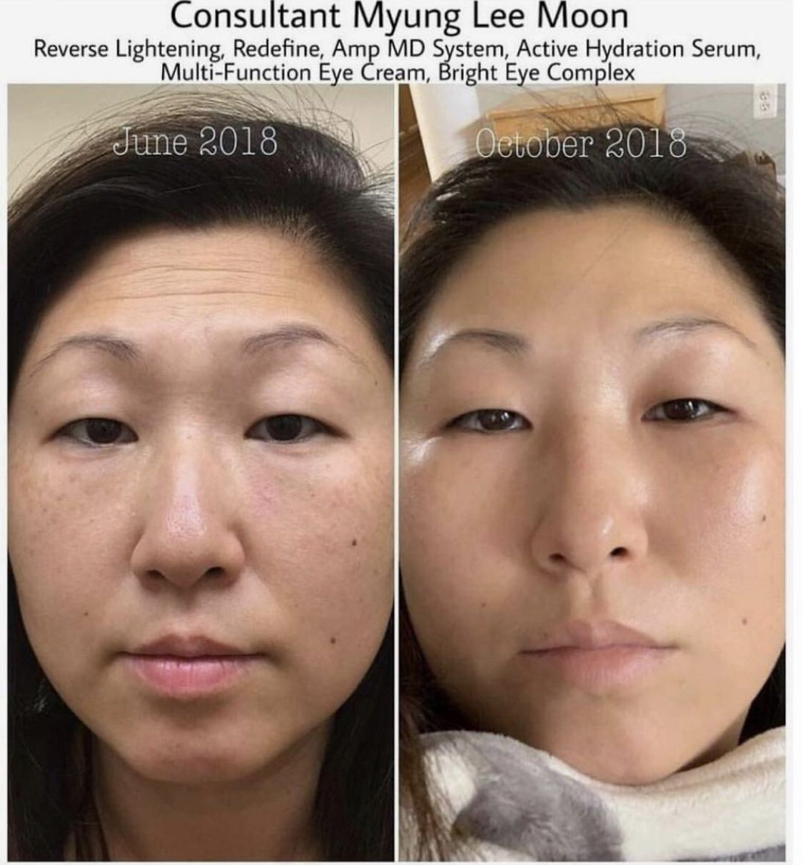 Roll Into The New Year With New Skin Rodan Fields Skincare Rodan And Fields Natural Anti Aging Skin Care Natural Skin Care Regimen