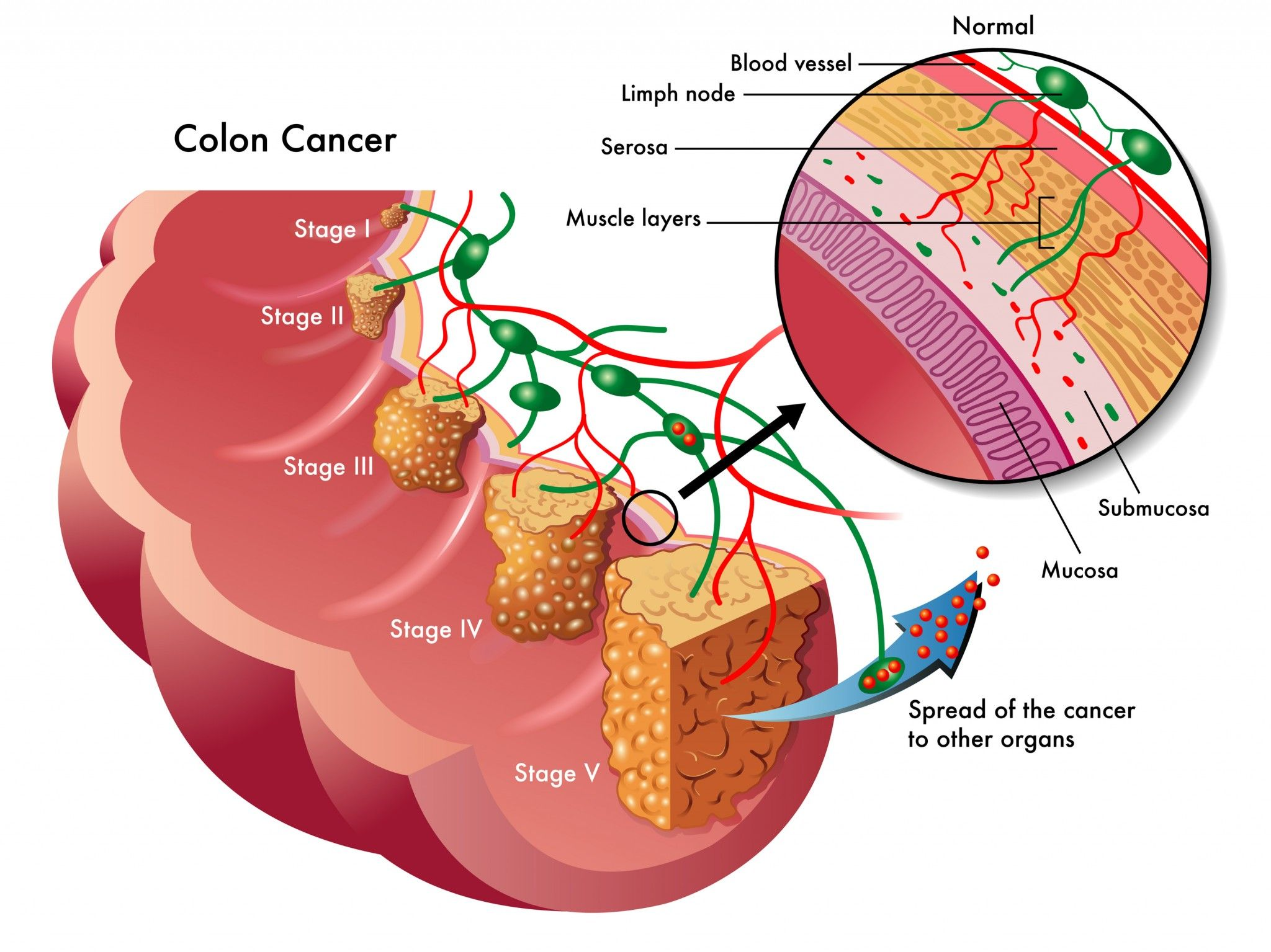 Connection Between Crohn's Disease/ Ulcerative Colitis and Colorectal Cancer - Health Precious