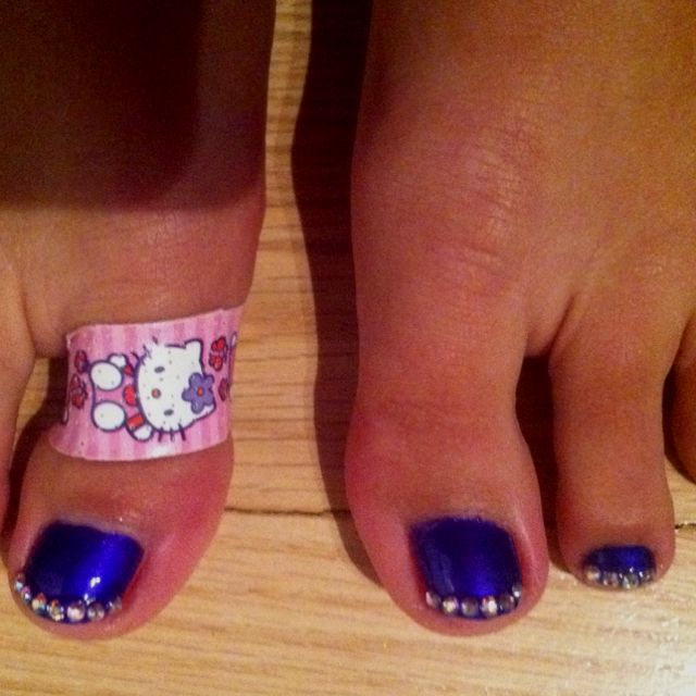 My toes!