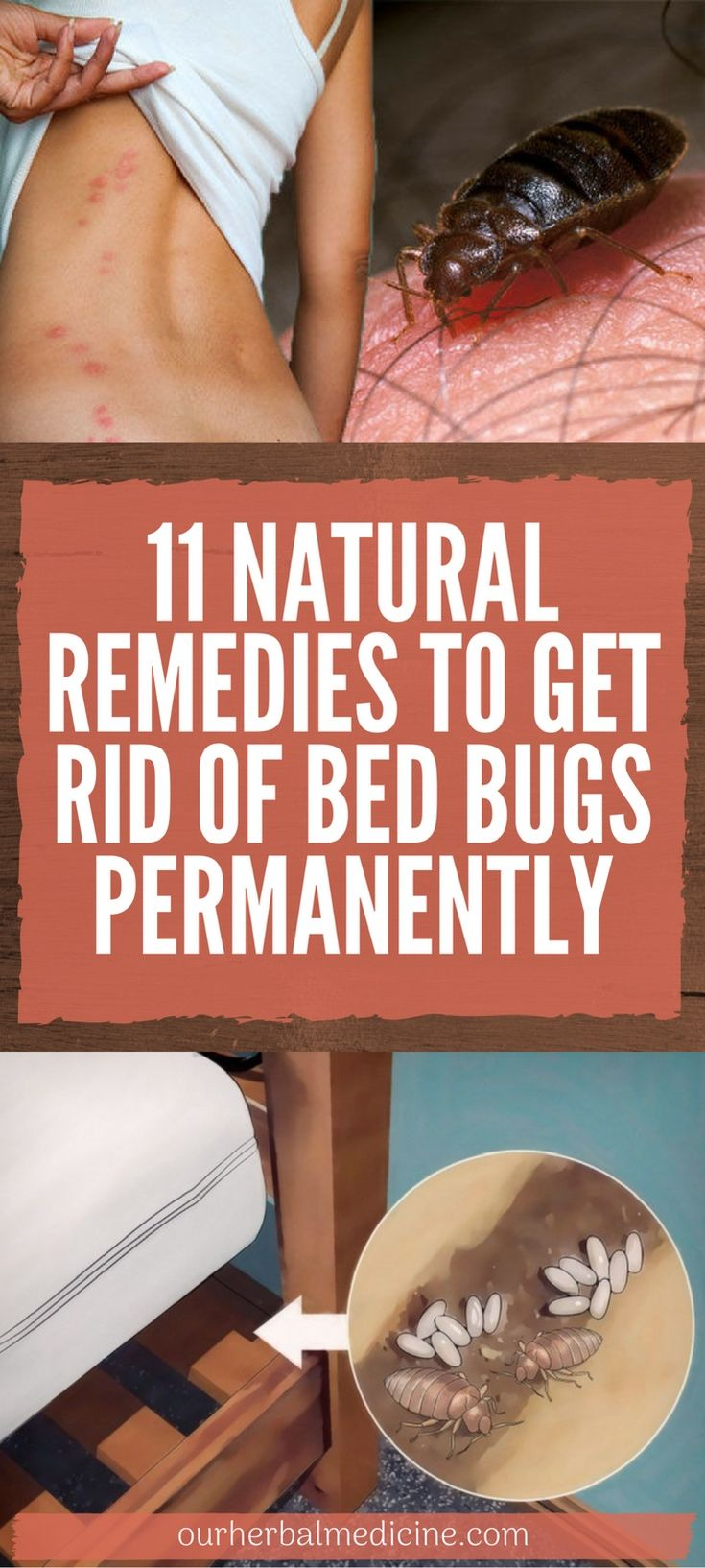 11 Natural Remedies To Get Rid Of Bed Bugs Permanently Rid Of Bed Bugs Bed Bugs Natural Remedies