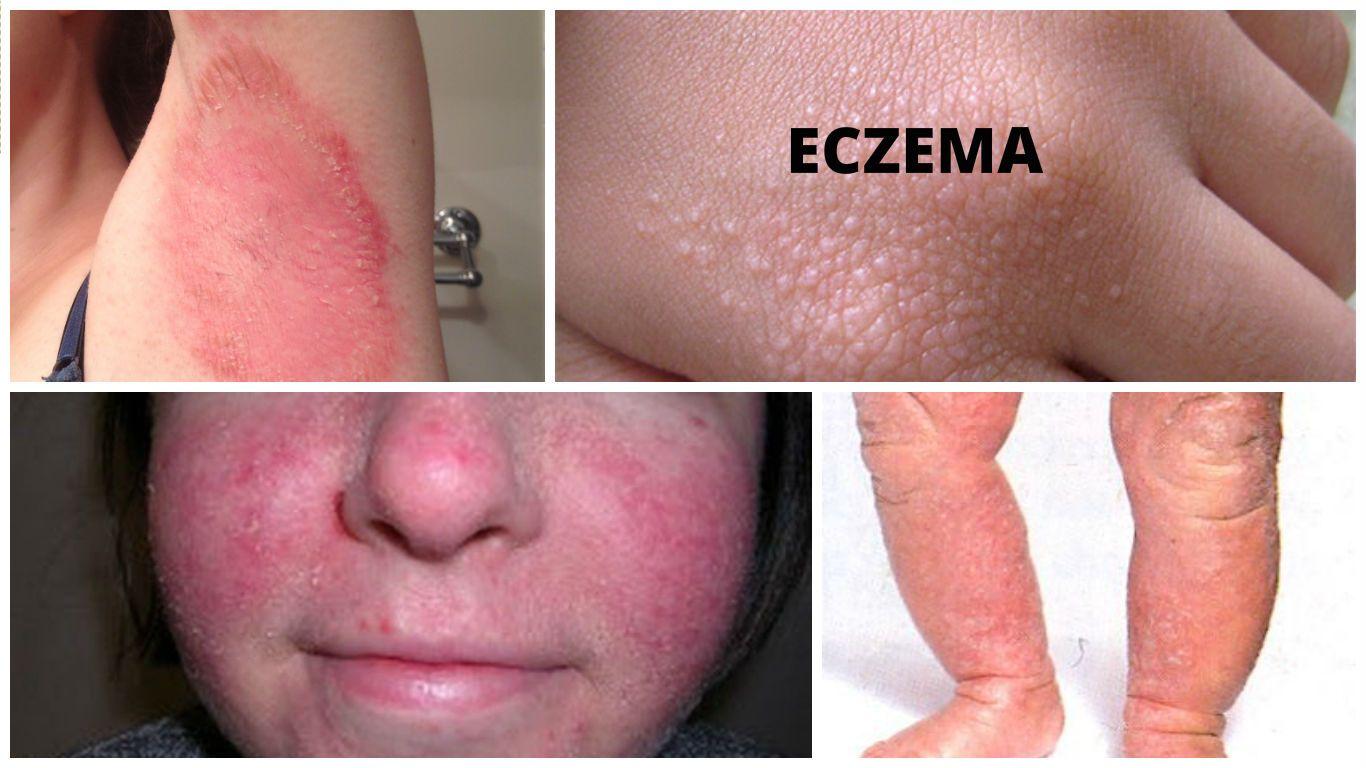 Lick dermatitis neurodermatitis — photo 3