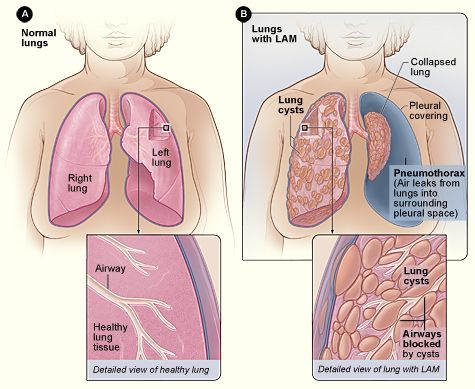 Normal Lungs And Lungs With Lam This Is What Took My Lungs