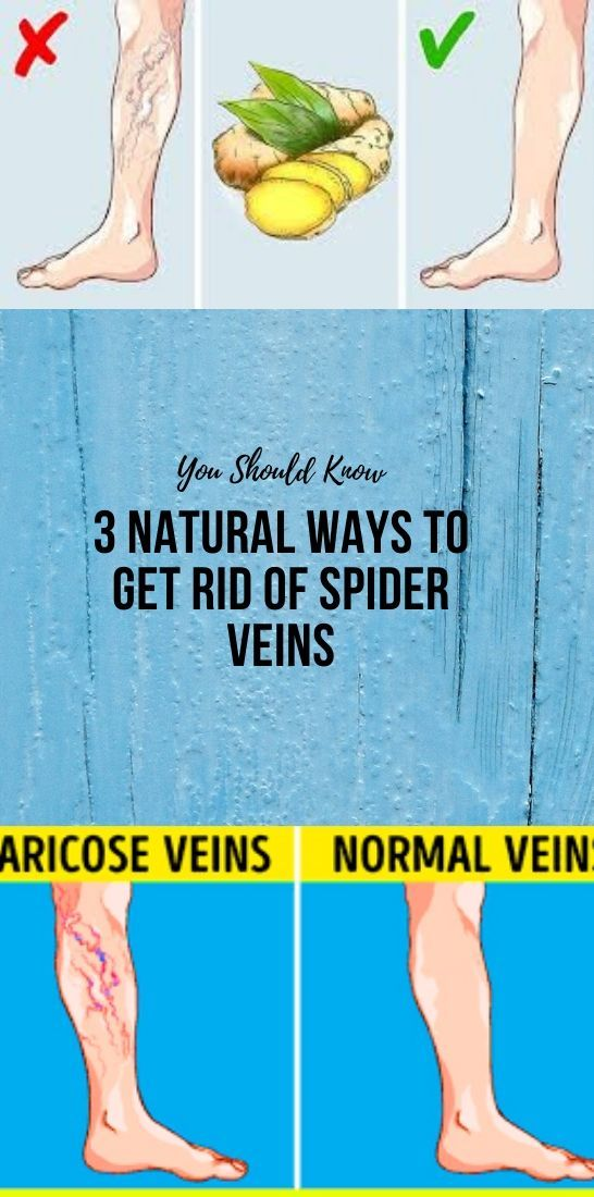 Photo of 3 Natural Ways To Get Rid Of Spider Veins