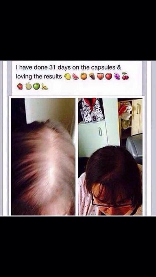 Hair Growth Using Juice Plus Premium Capsules Comment For More Info