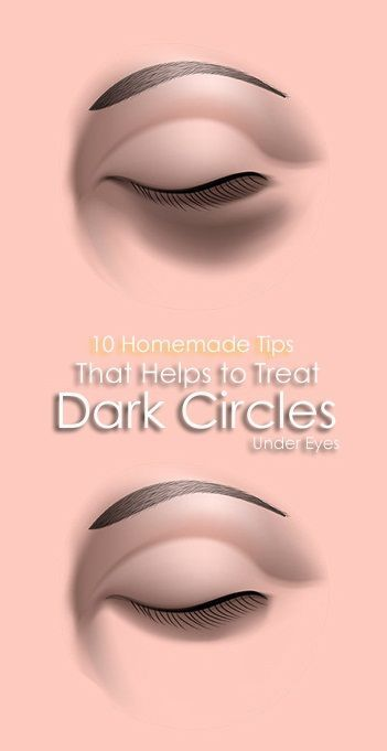 10 Homemade Tips That Helps to Treat Dark Circles Under ...