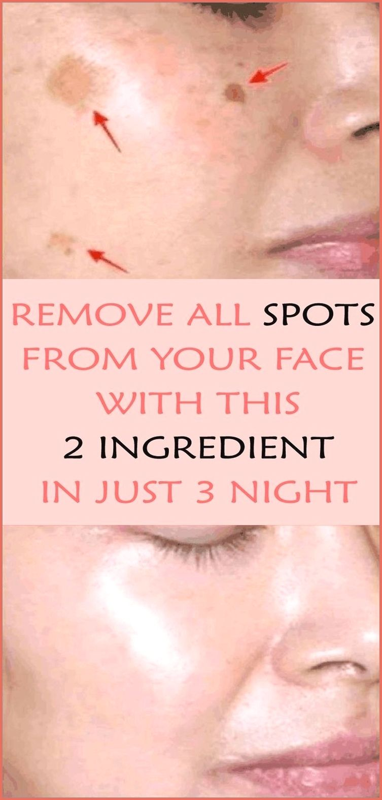 Removes All Spots On Your Face In Just 3 Nights