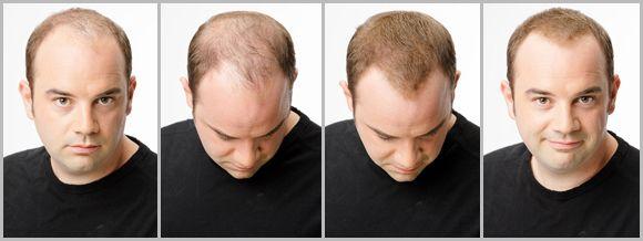 Kahle Stellen Kaschieren In Sekunden Hier Ein Beispiel Fur Den Toppik Effekt Naturlicher Haarwuchs Haare Schneiden Manner Frisuren Bei Haarausfall