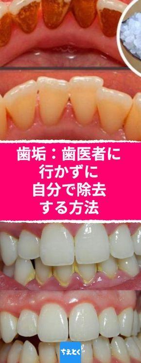 歯垢 歯医者に行かずに自分で除去する方法 自宅で手軽に歯石ケア 歯垢をとる 自宅で簡単に 歯医者いらず 重曹 ティーツリーオイル 歯石を取る 歯石 歯石除去 健康な歯