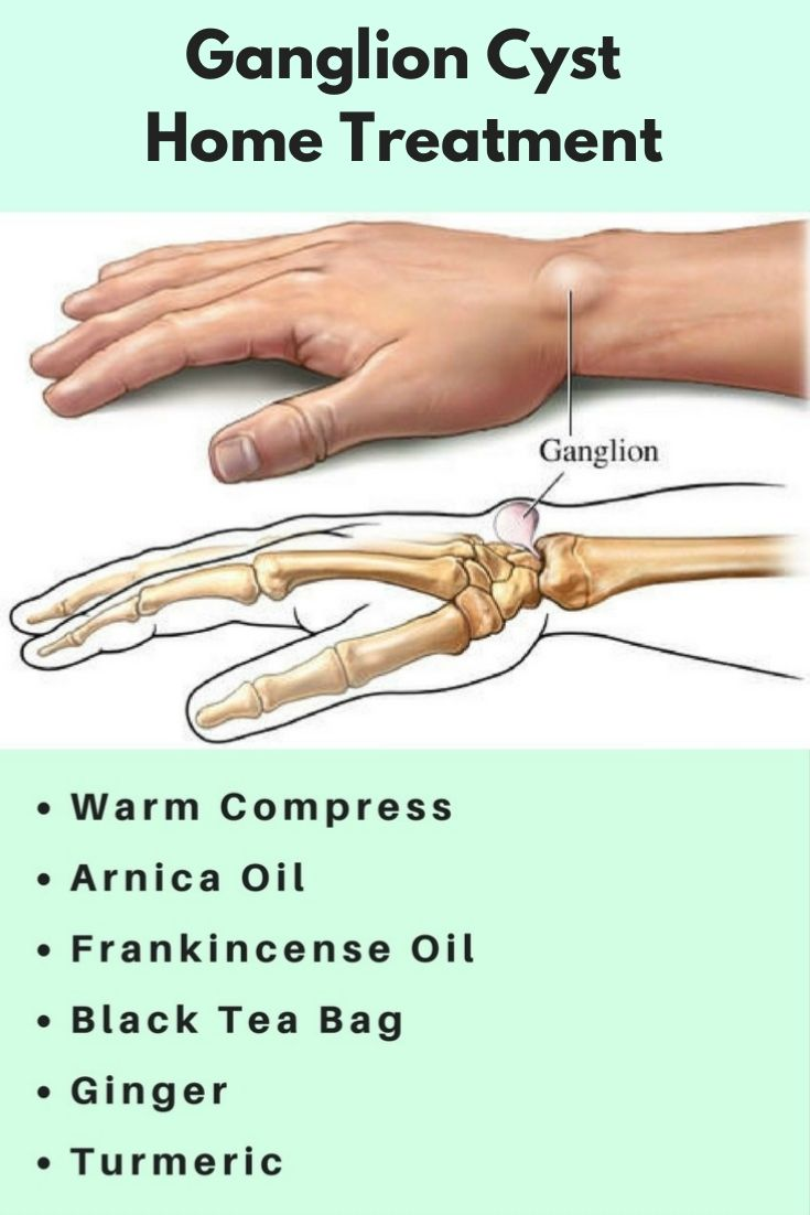 Ganglion Cyst Finger Natural Treatment