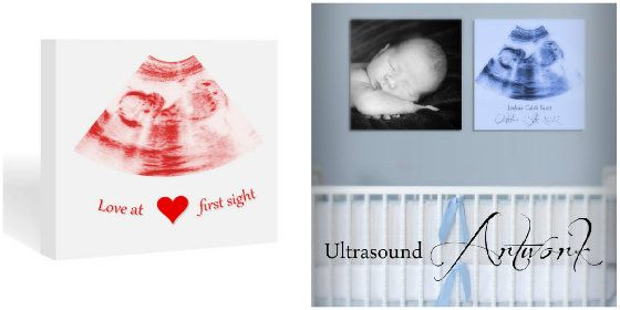 Gift Idea Ultrasound Canvas Art Prints
