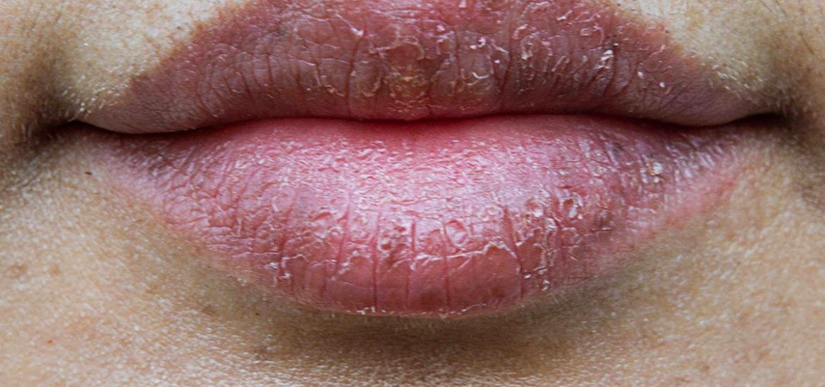 5 Simple And Natural Home Remedies To Heal Chapped Lips Natural