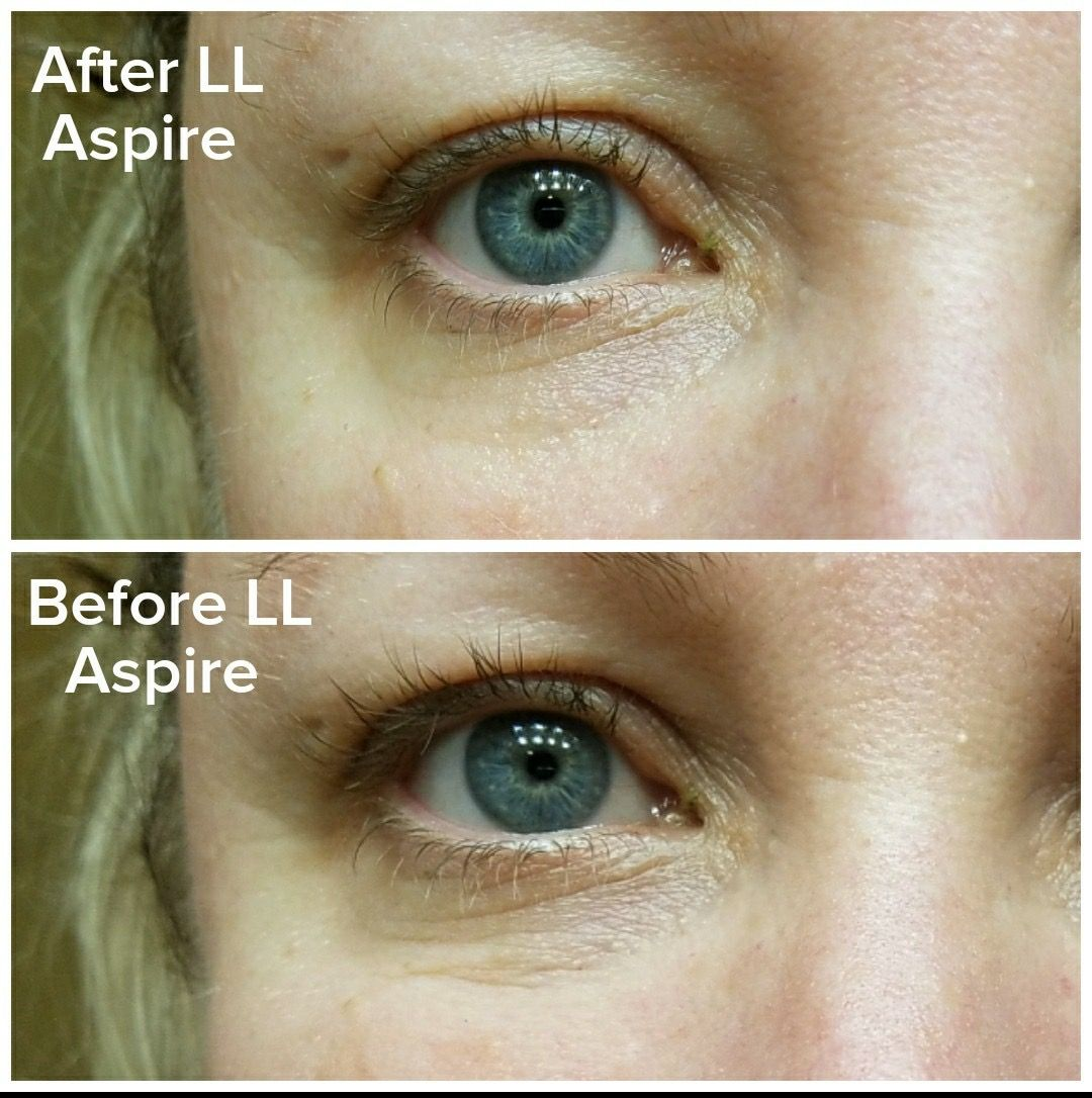 Amazing Results With Limelights New Eye Aspire Launched 8 1 17