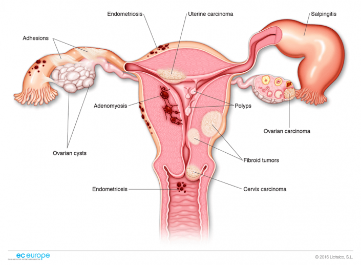 female reproductive system diseases   gynaecology - ginecología, Muscles