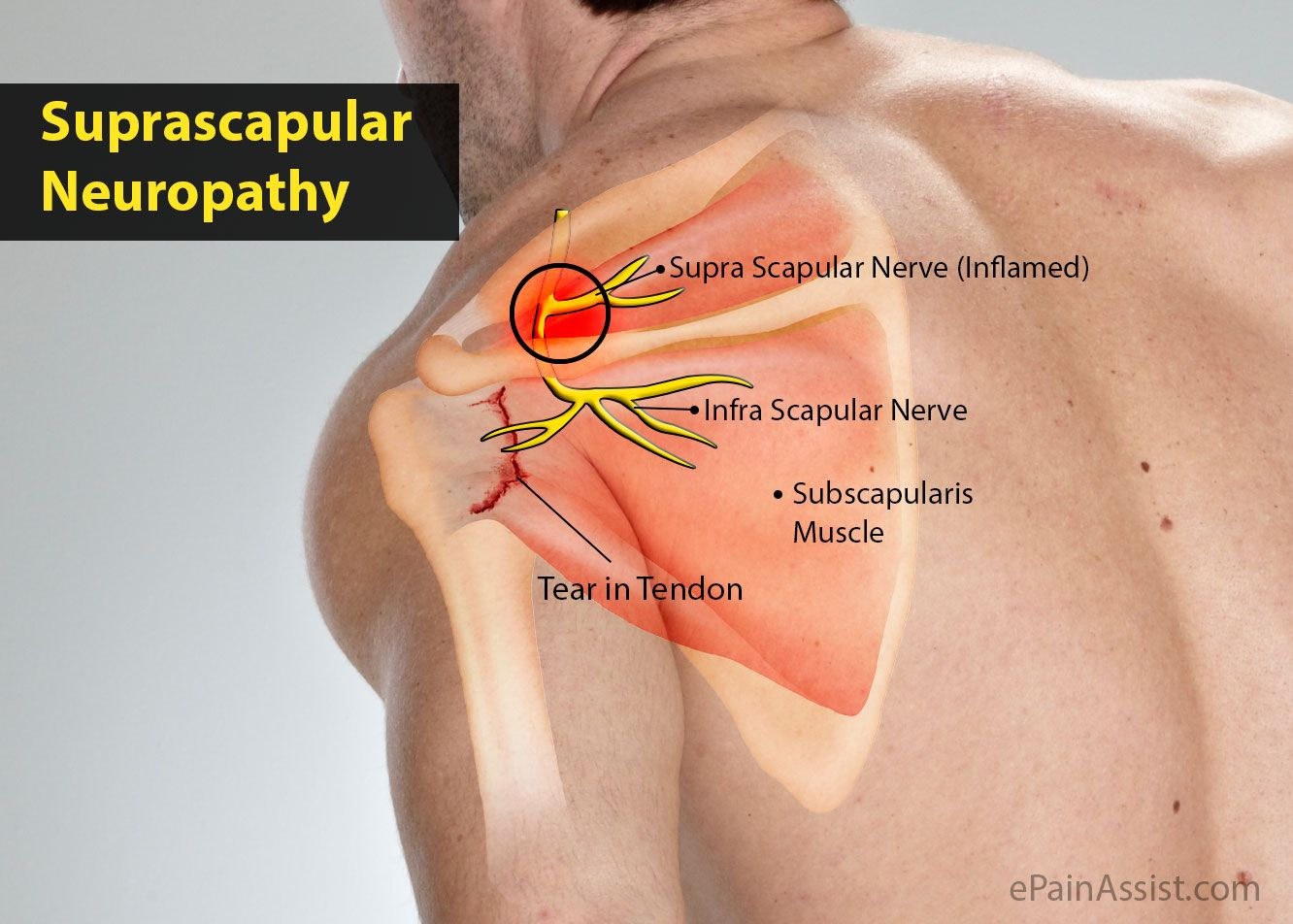 Suprascapular Neuropathy My Problems Pinterest