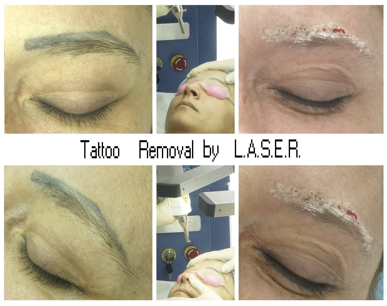 Pin by Ana Maria Margineanu Master Trainer on LASER Tattoo Removal ...