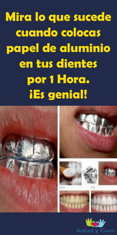 Blanqueamiento de dientes casero con papel aluminio