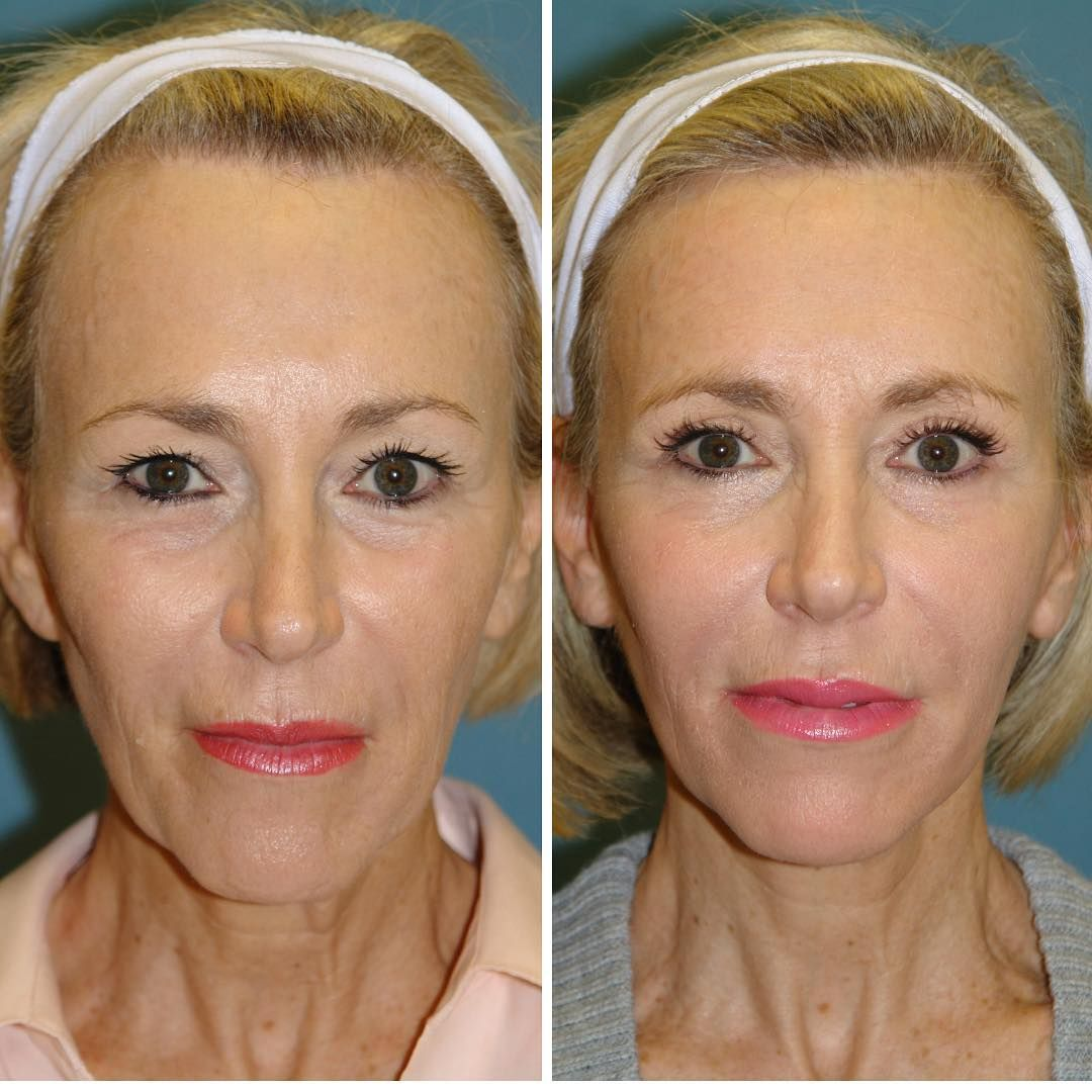 Surgeries included neck lift, cheek lift, outer brow lift