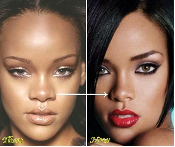 Rihanna plastic surgery nose job before and after pinterest rihanna - Rihanna avant apres ...