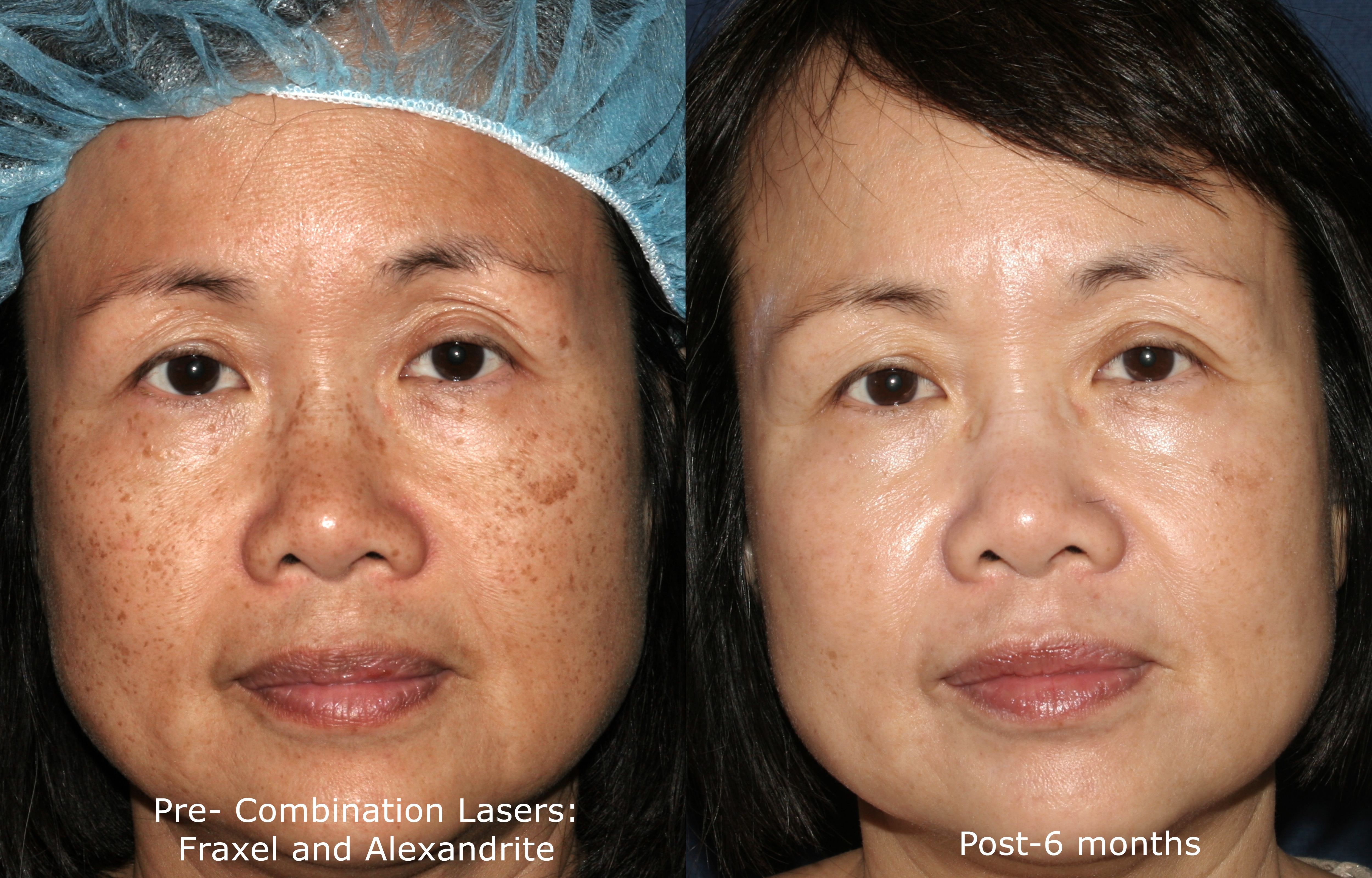 Best Before And After Dermatology Treatments In San Diego Clderm Laser Treatment Cosmetics Laser Laser