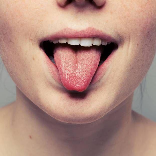 Schwarze, haarige Zunge nach Antibiotika | Haarige