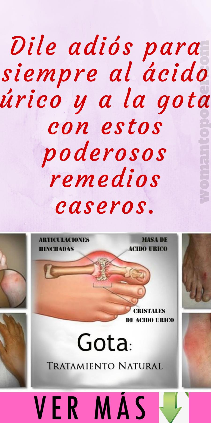 ácido urico tratamiento natural