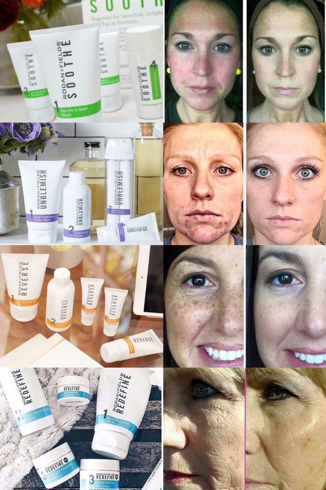 Pin On Healthy Skin By Angela Rodan And Fields