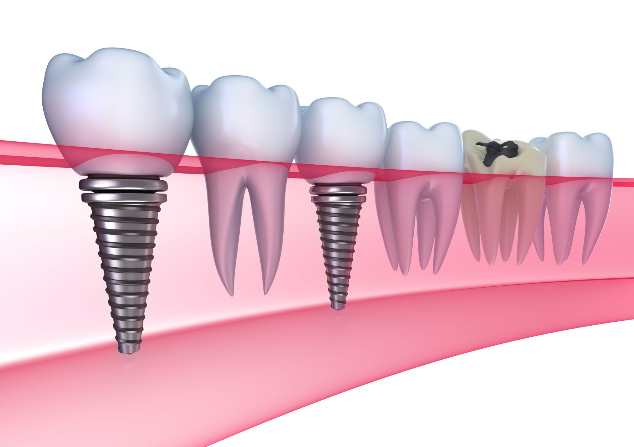 Does insurance cover the cost of dental implants nha