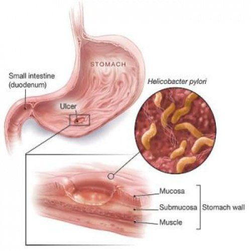 The bacteria Helicobacter Pylori (H. Pylori) was identified in 1982 as the  cause of stomach ulcers. Able to live in the harsh acidic zone of your  stomach, ...