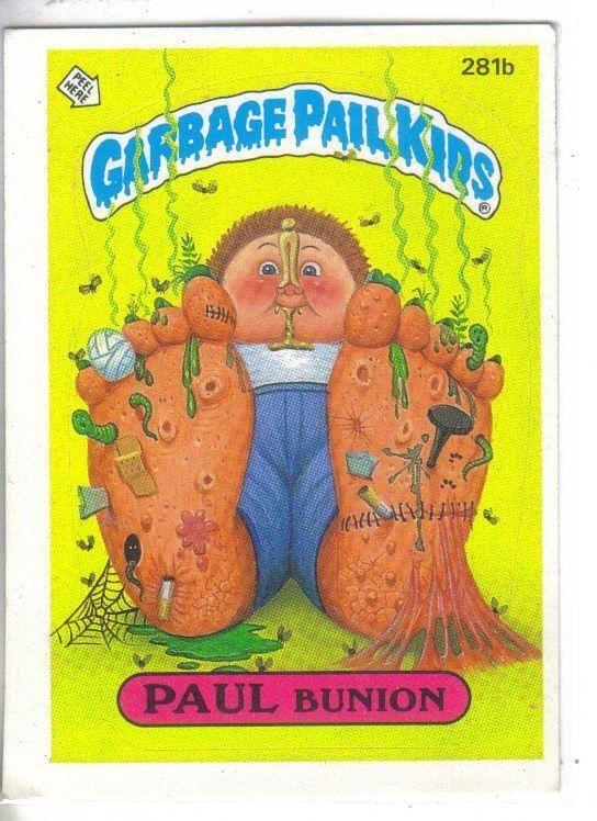 Garbage Pail Kids 1987 281b Paul Bunion La Pandilla Basura Y Dibujos