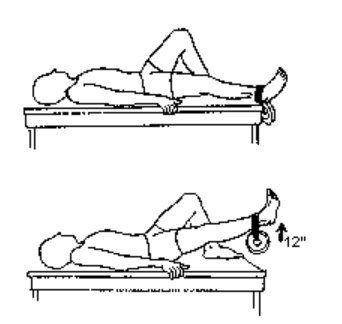 An exercise prescribed to Richard Knox: Lying on a table with a straight leg, lift the affected leg to strengthen the quadricep muscle using  ankle weights. For more information, see the Nicholas Institute of Sports Medicine and Athletic Trauma.