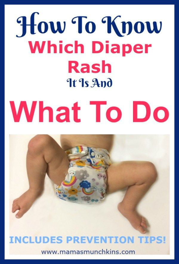 Learn To Identify What Diaper Rash It Ishow To Quickly Get Rid Of It And Prevention Tips Im Going To Share My Tips And Tricks For Diaper Rashes With You