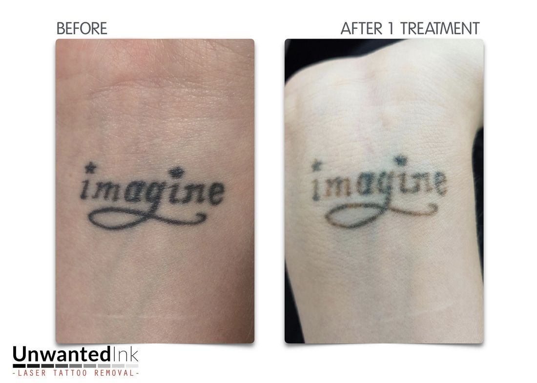 Pin by unwanted ink tattoo removal on laser tattoo removal for Tattoo removal lasers